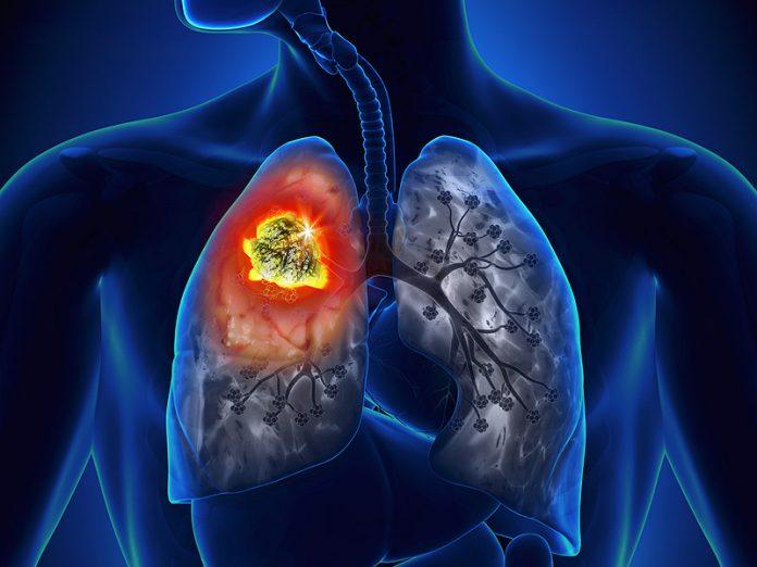 Lung Cancer in Kenya