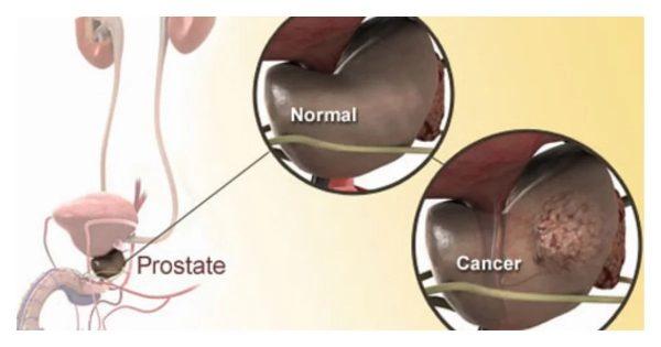 Prostate Cancer in Kenya